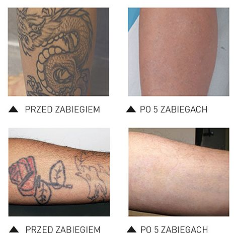Laserowe Usuwanie Tatuażu Discovery Pico Plus Katowice